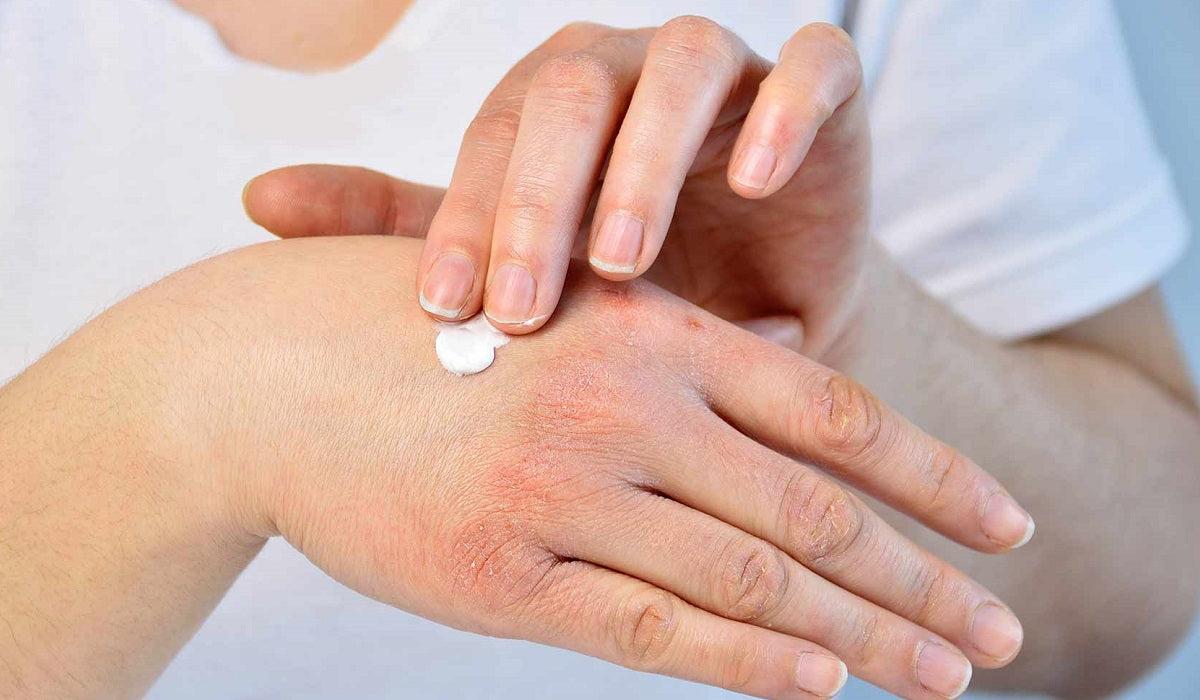 gyógyítani a bőr pikkelysömörét)