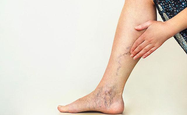 hogyan lehet egy vörös foltot kenni a lábon visszérrel)