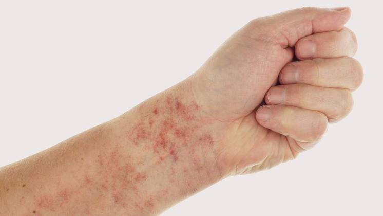 milyen betegség, amikor vörös foltok jelennek meg a lábakon)