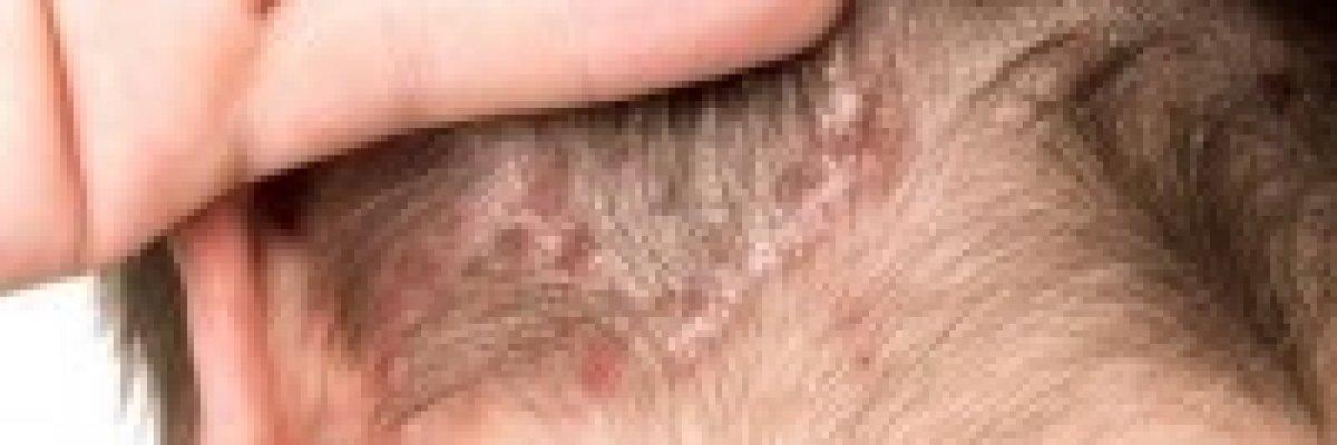 Viszkető, pikkelyes bőr az arcon