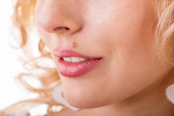 Hogyan lehet megszabadulni a piros foltok az arcon