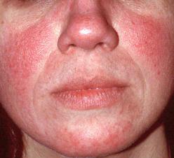 Piros foltok az arcon és a nyakon a stressz, Maszk mandulás az arc pigment foltok