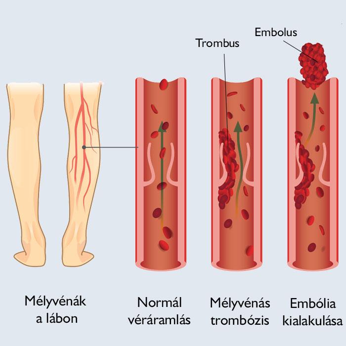 vörös foltok a lábakon vérrögök