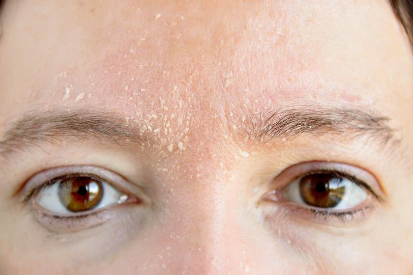 az arcbőr hámlik és vörös foltok vannak)
