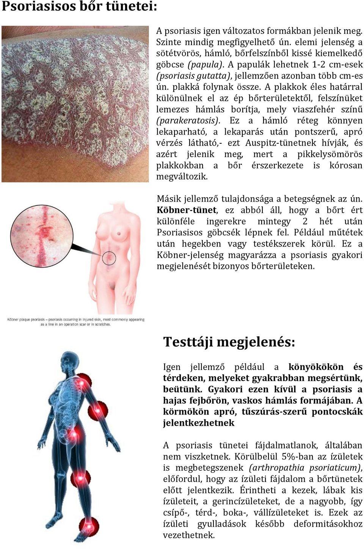 pikkelysömör kezelése népi gyógymódok)