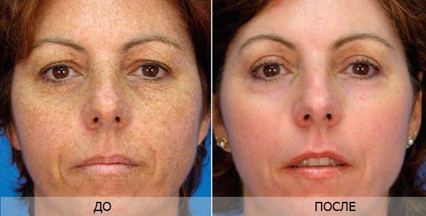 Az arc kopásának gyors gyógyítása Gyors sebgyógyulás az arcon: hogyan lehet megelőzni a fertőzést