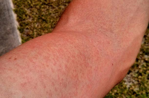 láz és vörös foltok a hason vörös folt a lábán egy zúzódás után
