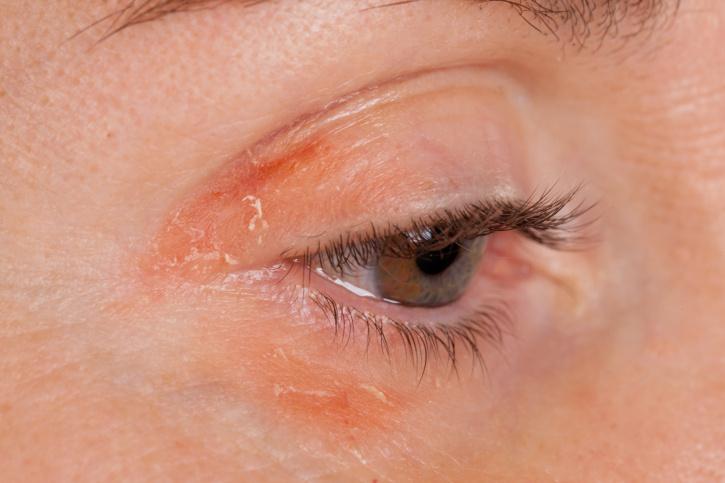 vörös folt a szem alatt az arcon)