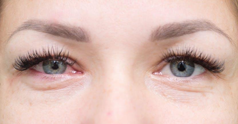 5 ok, amitől bevérezhet a szem: jóval több lehet, mint egy kis gyulladás - Egészség   Femina