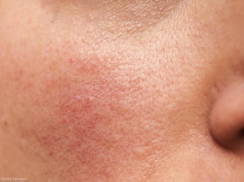 vörös ovális foltok az arcon)