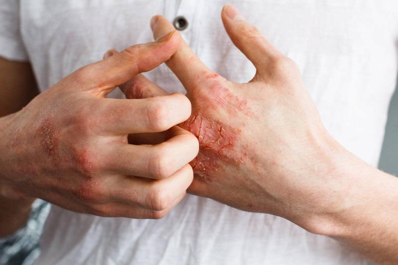 orvosság a pikkelysömörre a testen felülvizsgálatok