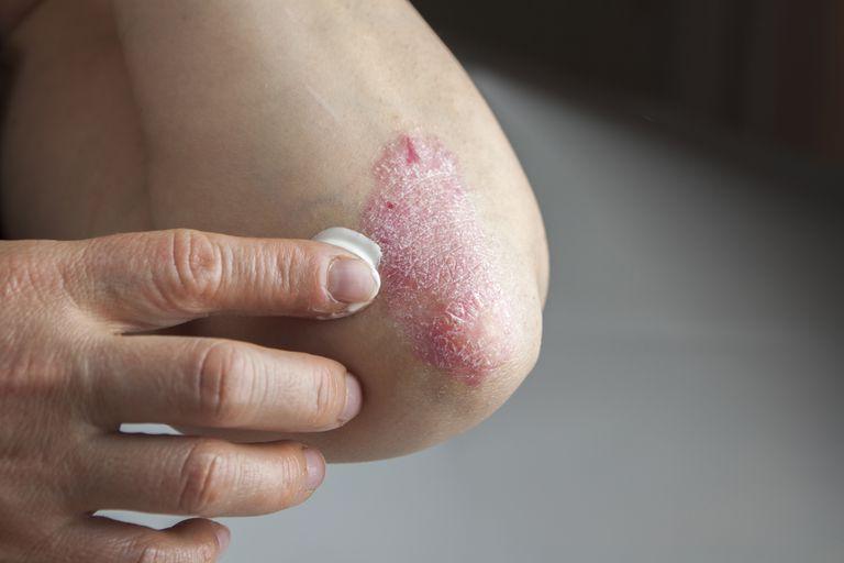pikkelysmr az egsz testben okai s kezelse