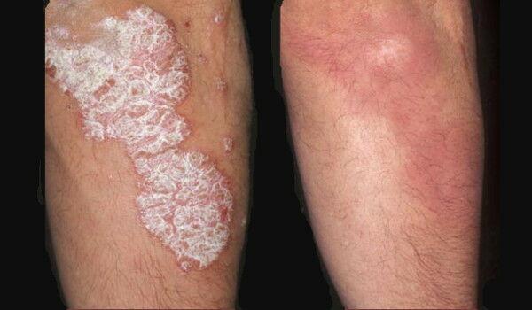 a fájás után vörös folt van az arcon fáj a lábán a piros folt