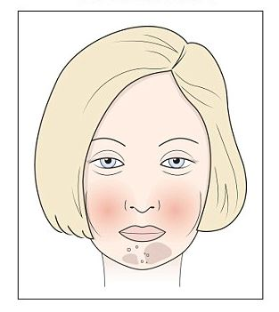 Bőrkiütés a gyermek fotóján, magyarázattal - Tünetek November