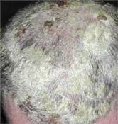 fejbőr pikkelysömör a haj kezelésében