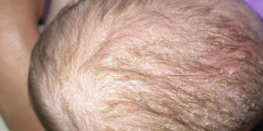 aki kezeli a fejbőr pikkelysömörét