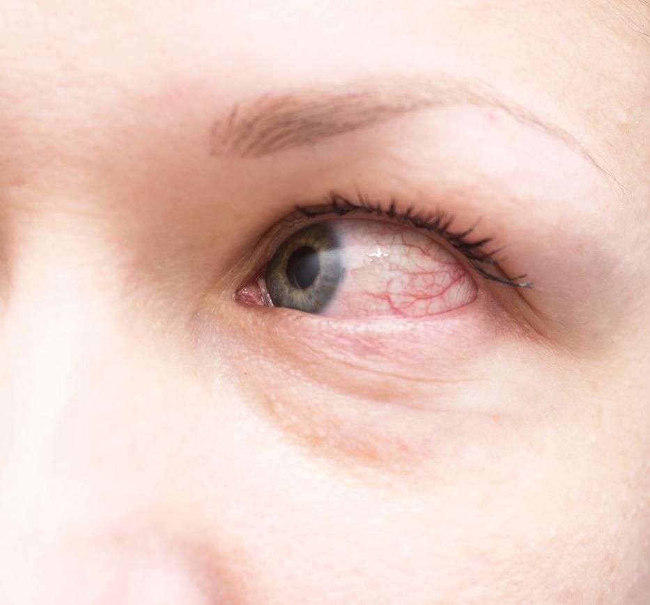 vörös szemek a szeméremrészen a nők viszketnek