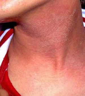 fotó piros foltok az arcon HIV-vel