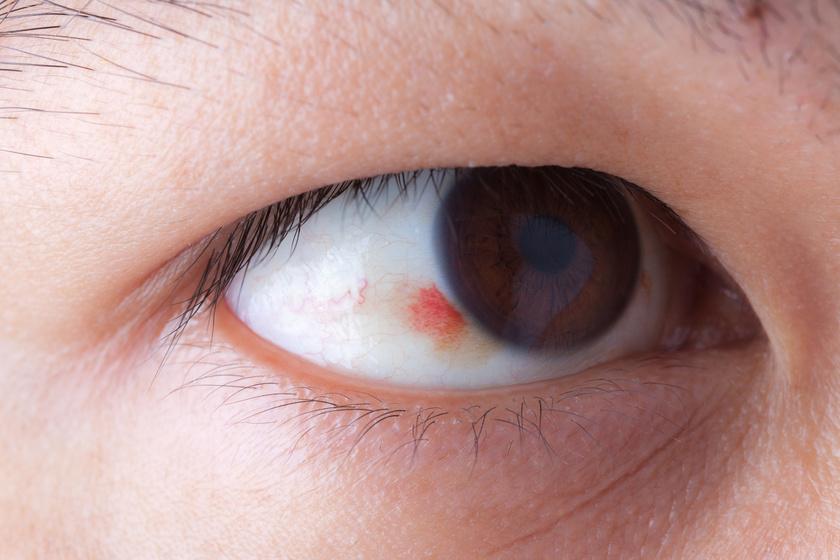 vörös folt a szemhéj kezelésén