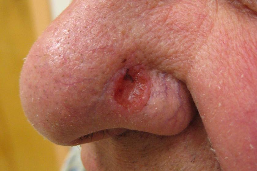 bőrrák vörös foltok formájában