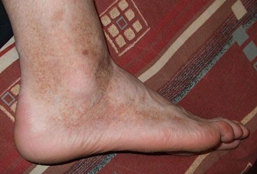 a lábak duzzadtak és vörös foltok borítják)