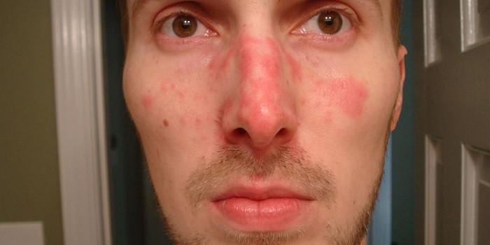 vörös pikkelyes foltok egy felnőtt arcán)