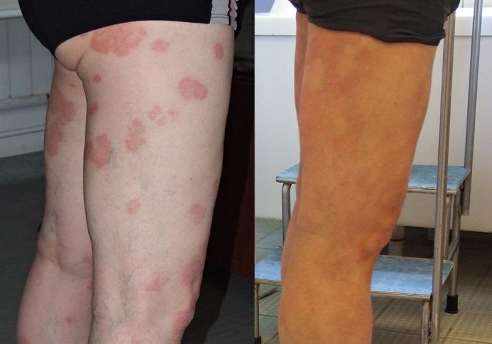 Volga régió központja pikkelysömör és vitiligo kezelésére vörös foltok a testen. hogyan kell kezelni