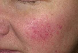 vörös folt az arcon bőr pszoriázis kezelése