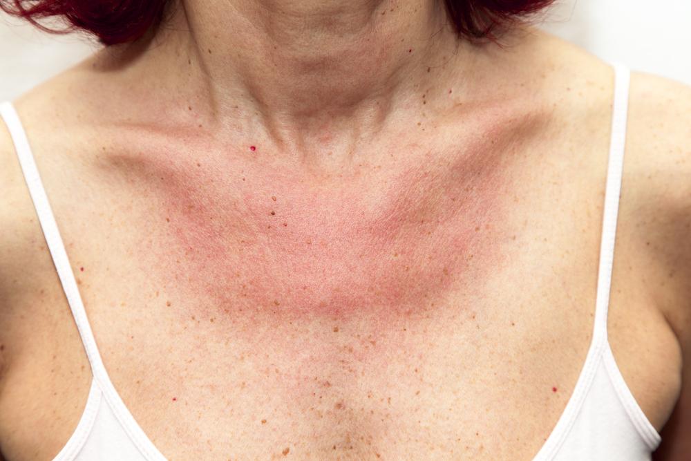 kiütés a bőrön vörös foltok formájában felnőtteknél