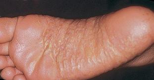 pikkelysömör barbera kezelés metotrexáttal)