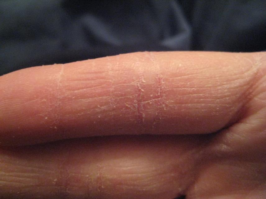 a kéz foltja vörösre hámlik