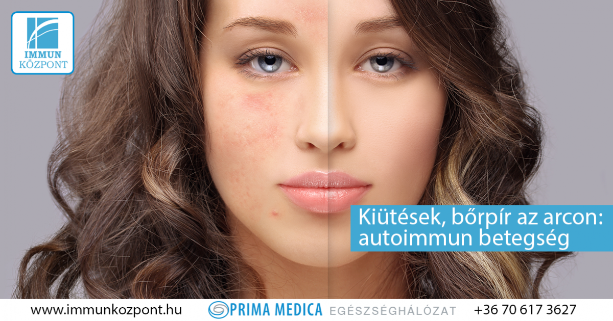 vörös foltok az arcon mérgezéssel vörös foltok jelentek meg a fejbőr fotóján
