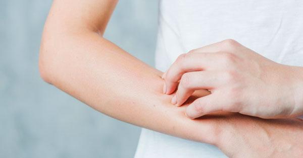 a kezén viszket egy nagy vörös folt)