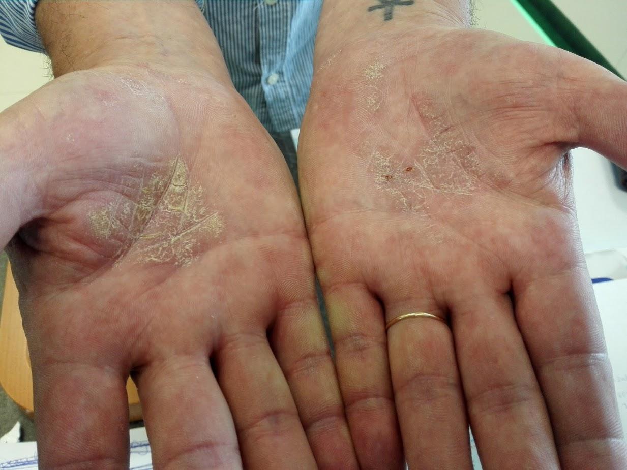 vörös foltok a lábakon fotó és diagnózis