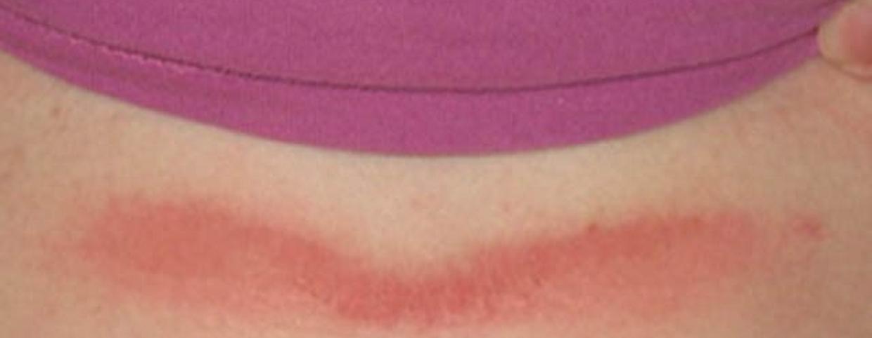 vörös foltok a mell alatt hogyan kell kezelni