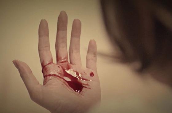 álomkönyv vörös folt a kezén