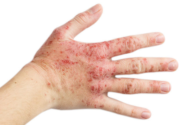 piros folt a kézen a hüvelykujj közelében