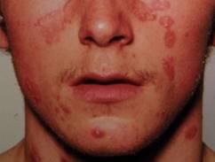 vörös foltok kezdtek megjelenni a testen és lehámozódtak megjelenő és eltűnő vörös foltok az arcon
