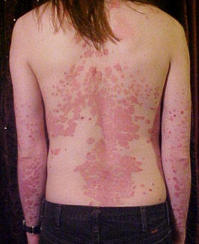 A pikkelysömör gyógyvizes kezelése - Termál Online