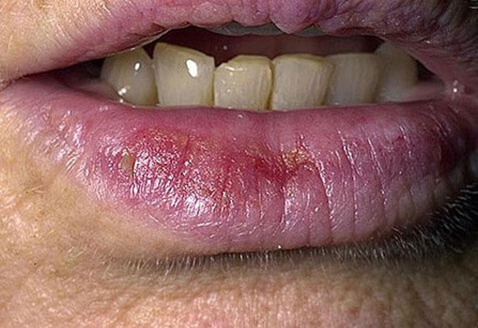 vörös foltok a bőrön az ajkak közelében)