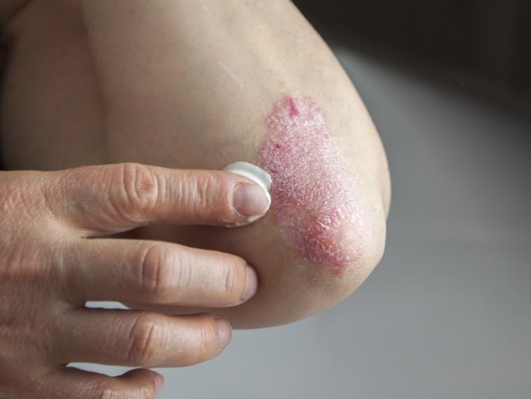 Hatékony pikkelysömör tabletták - Az allergének