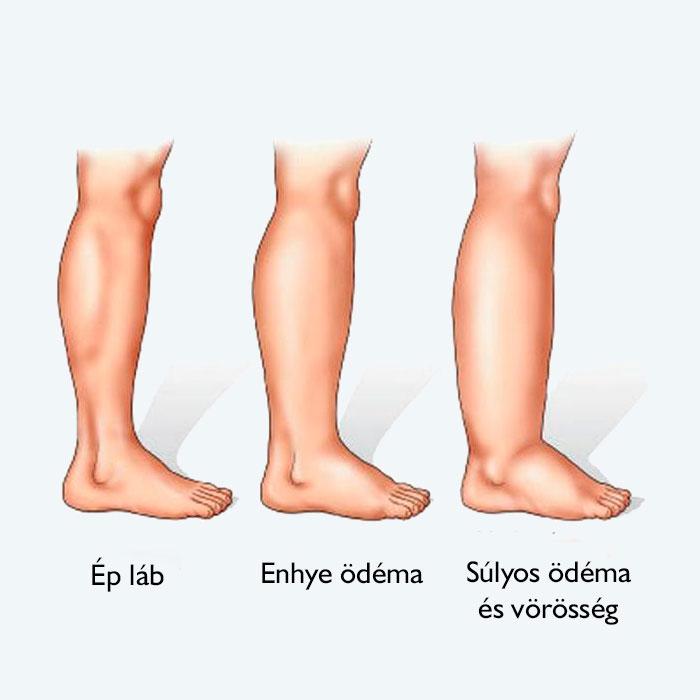 vörös foltok a lábakon vérrögök)