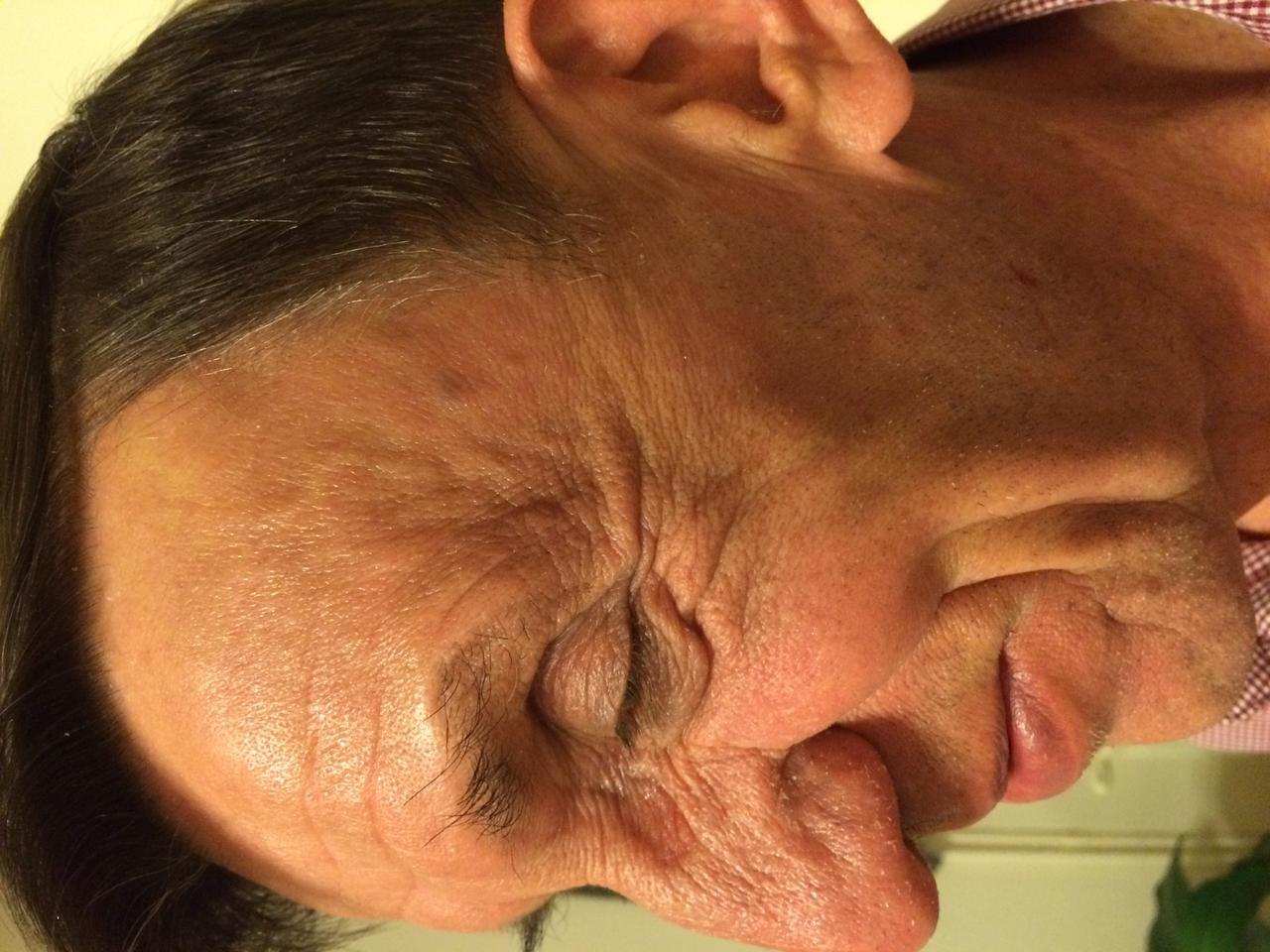 Nizoral a pikkelysömör elleni küzdelemben - Maszkok
