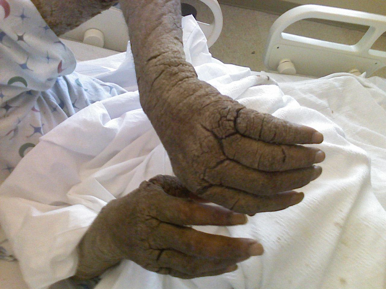 Körülírt vörös foltok a felkaron - Bőrbetegségek