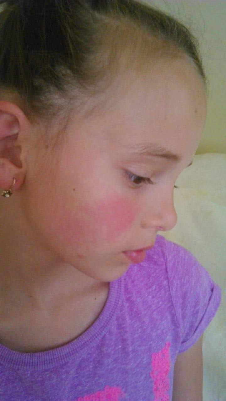 torokfájás és vörös foltok az arcon)