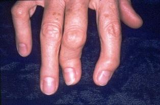 pikkelysömör ízületi fájdalom pórusok megnagyobbodott vörös foltok hámlik