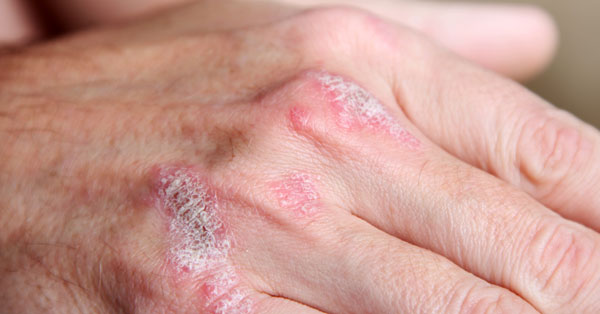 hogyan kell kezelni a kezeket pikkelysömörrel)