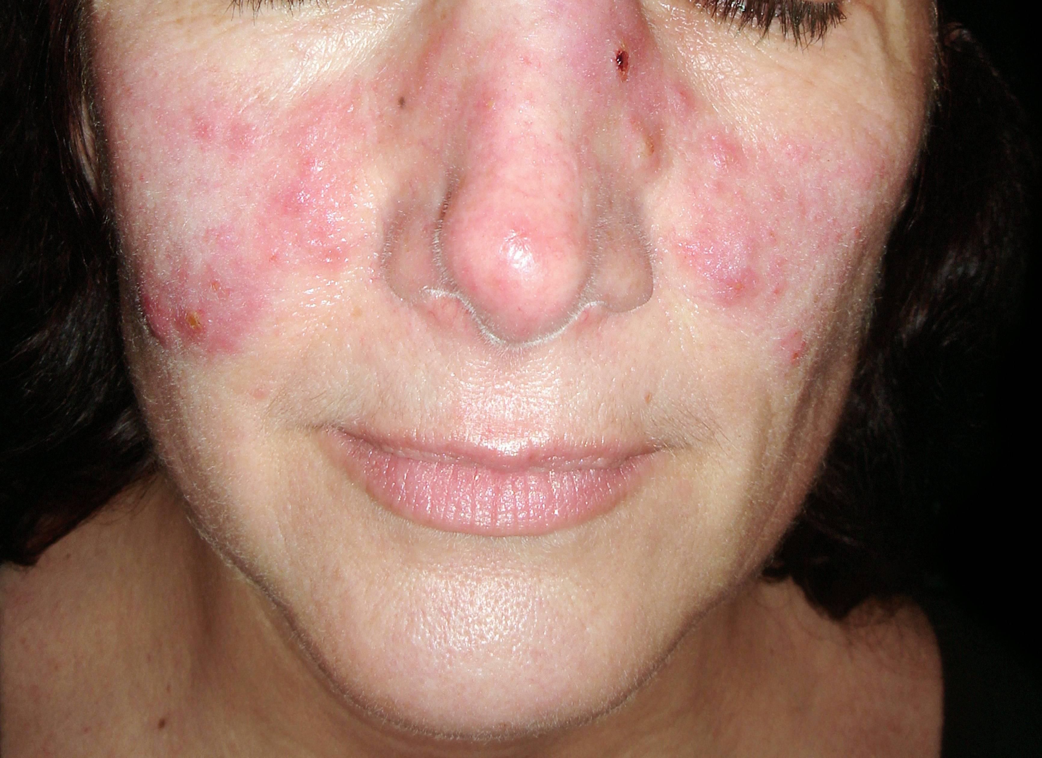 reggel arc vörös foltokkal hogyan lehet megszabadulni a viszket fejbr pikkelysömörrel