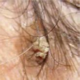 sebek vagy vörös foltok jelennek meg a fejbőr fotóján)