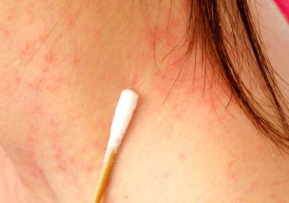 vörös foltok a hónalj alatt viszketés kezelés